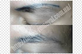 tattoo removal permanent makeup