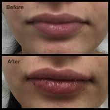 injectable fillers miami jolie