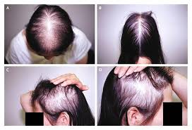 hair loss in women baltimore outloud