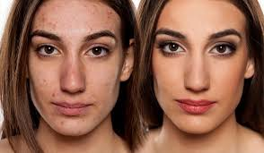 cover up acne and acne s with makeup