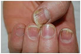 optimal management of nail disease in