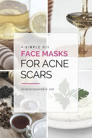 4 simple diy face masks for acne scars