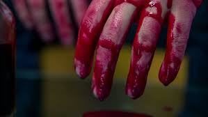 Image result for blood dripping from an arm pic