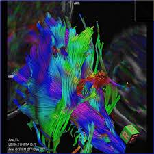Resultado de imagen de La maravilla de nuestro cerebro