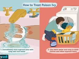 poison ivy symptoms causes diagnosis