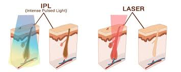 ipl vs laser hair removal reviews