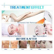 hair removal ipl e light shr