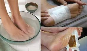 homemade detox foot pads for removing