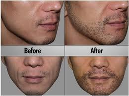 beard hair transplant in gurgaon south