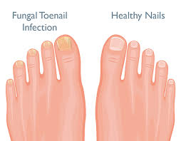 how to treat fungal nail infections