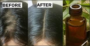 tea tree oil to get rid of head lice