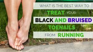 bruised toenail from running