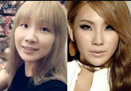 idols had plastic surgery