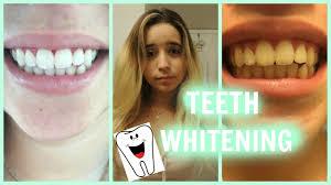 teeth whitening tutorial zoom