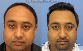 hair transplant surgery photos with