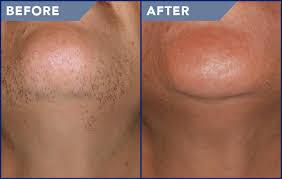 laser hair removal shanti skin care