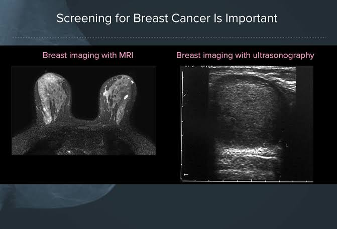 """Image result for mammography screening"""""""