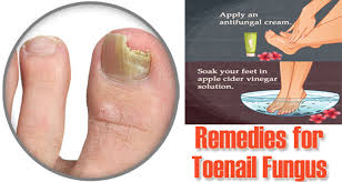 15 diy home remes for toenail fungus