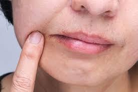 natural remes for angular cheilitis