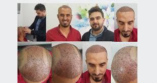ali yuva hair clinic turkey hair