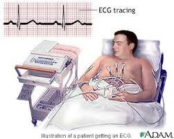 diy ecg machine on the swharden