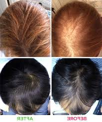 laser hair therapy only 2