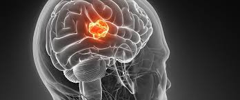 Understanding Glioblastoma: The Most Common Type Of Malignant Brain Tumor