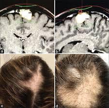 focal alopecia following gamma knife
