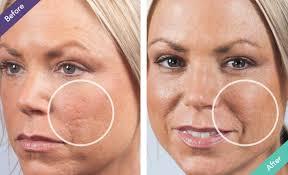scars with dermaflage scar filler makeup