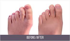 Hammer Toe Surgery NYC | Best Hammertoe Surgeon in New York City