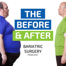 after bariatric surgery podcast