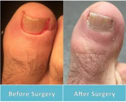 ingrown toenail surgery perth