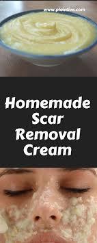 homemade scar removal cream plain live