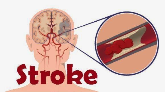 """Hasil gambar untuk contoh penyakit stroke"""""""