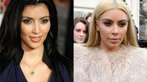 Kim Kardashian Before And After: Inside Her Secret Surgery Transformation |  OK! Magazine