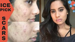 how to cover acne scars ice pick scars