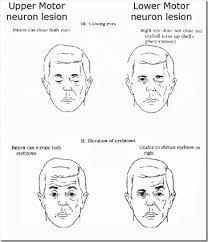 upper vs lower motor neuron lesions