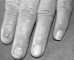nail patella syndrome a review of the