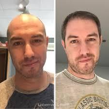 hair restoration san francisco