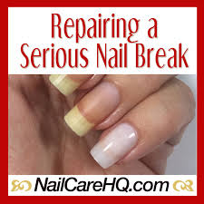 broken nail repair what to do when it