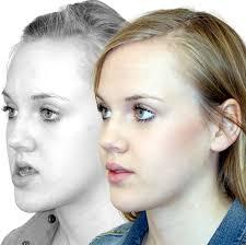 sagittal deviation upper jaw