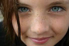 علاج طبيعي لازالة النمش من الوجه بشكل فعال