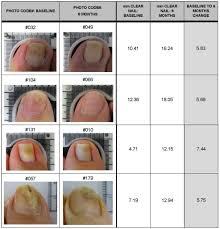 laser treatments cure toenail fungus
