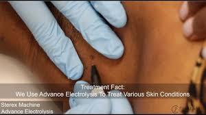 skin electrolysis procedure at