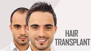 prp hair regrowth treatment in