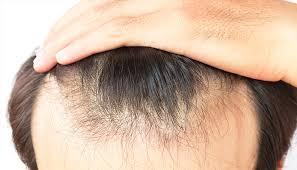 ニューモは育毛効果なし!悪い口コミの真相とは