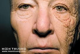 Kết quả hình ảnh cho Tia UV có thể gây hư tổn, lão hóa và cả ung thư da