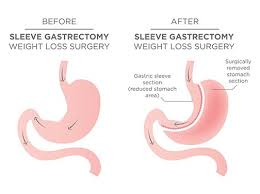 sleeve gastrectomy weight loss surgery