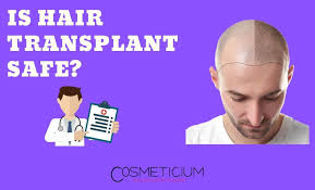 is hair transplant safe precautions