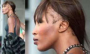 traction alopecia bauman cal group